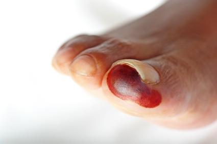 Ischemická choroba dolních končetin - Vše o zdraví