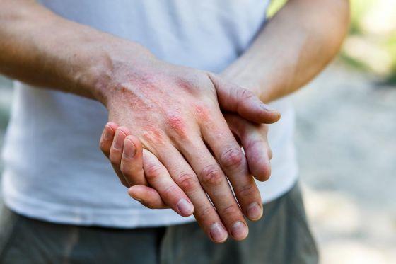 Kontaktní dermatitida - Vše o zdraví