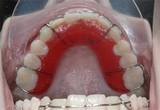 Průhledné zuby - Vše o zdraví