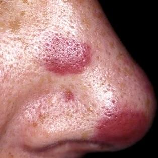 Kaposiho sarkom - Vše o zdraví