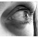 Kruhy pod očima - Vše o zdraví