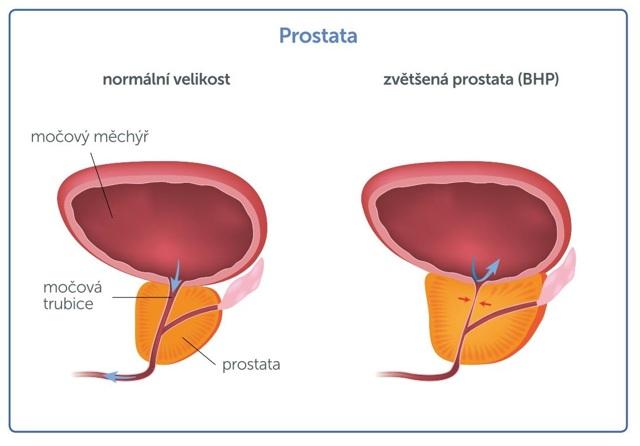 Problémy s prostatou - Vše o zdraví