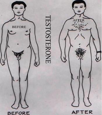 Klinefelterův syndrom - Vše o zdraví