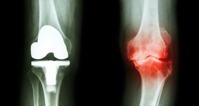 Nateklé koleno - Vše o zdraví